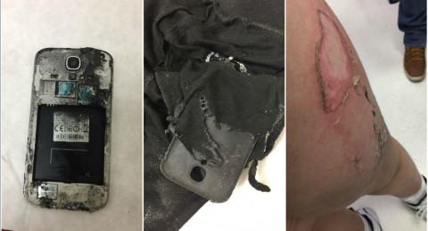 إصابة طفل اثر انفجار هاتف