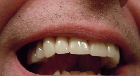حل سحري لرائحة الفم الكريهة