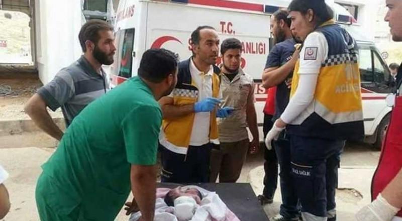 سورية: ولادة طفل برأسين!